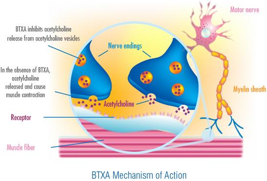 Clostridium.botulinum causes Botulism, a paralysis of muscles.