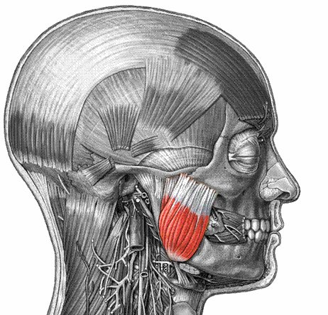 The jaw muscles are typically involved in Tetanus.