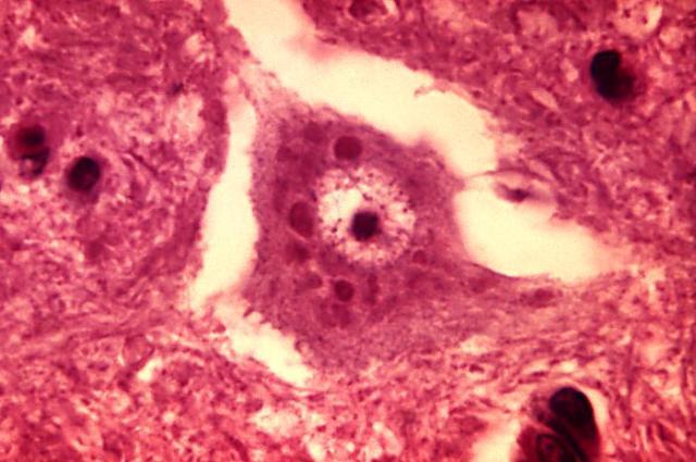 Brain Inflammation - Negri bodies