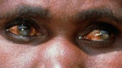 BIOTIC INTERACTIONS - SPIRITUALISM VS PARASITISM. WOMAN WITH RIVER BLINDNESS CAUSED BY FILARIAL PARASITE.